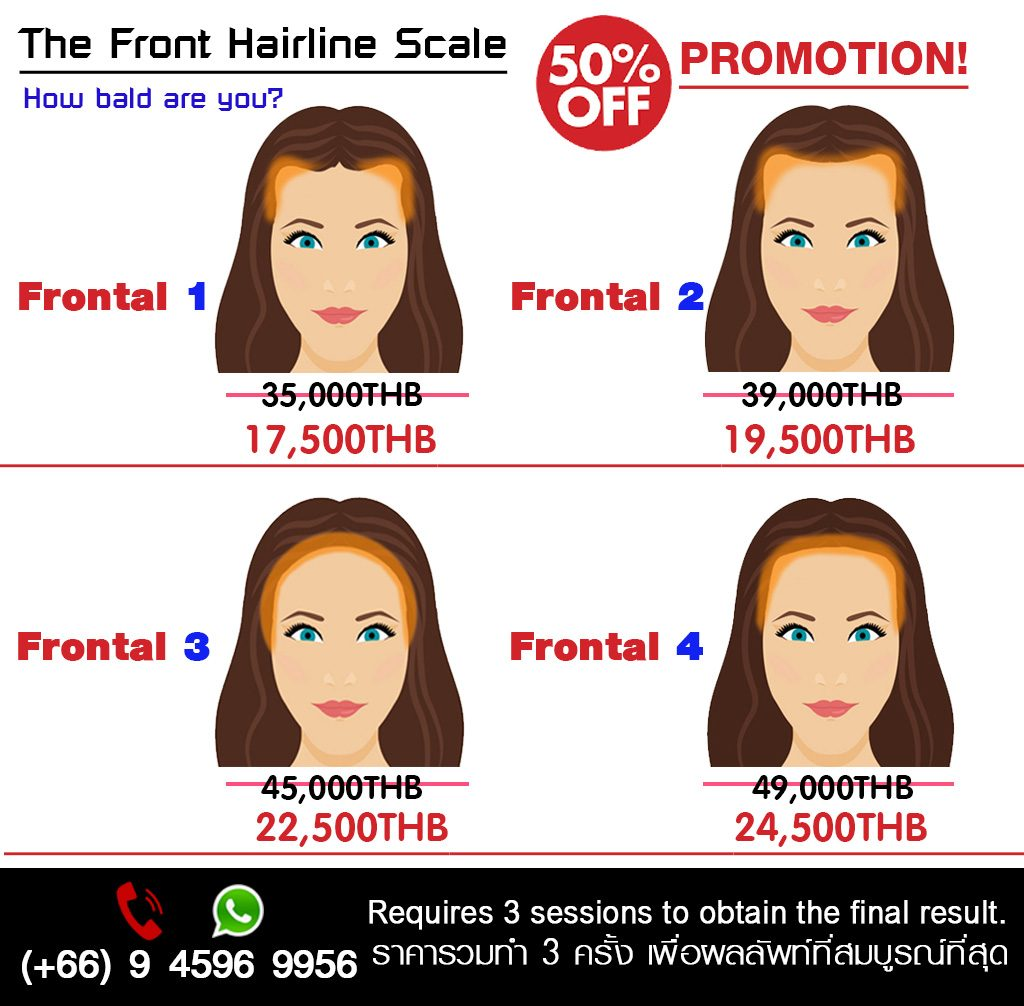 Pricing Hairline Women